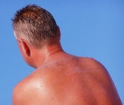 sunburn_www_sportdiver_com